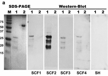 The OmpA-like Protein BCAL2958 is a Potential Candidate for Preventive Therapies of B. cepacia Complex-Infected Cystic Fibrosis Patients   iBB   Scoop.it