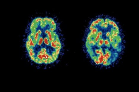 Imaging Suggests Wide Window for Alzheimer's Tx | Psychology Professionals | Scoop.it