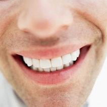 Do Home Whitening Kits Work? | Teeth Whitening Tips | Scoop.it