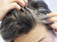 Why Hair turn Grey? | Herbal Products | Scoop.it