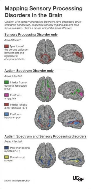 Kids with Autism, Sensory Processing Disorders Show Brain Wiring Differences | Usal - MediNews | Scoop.it