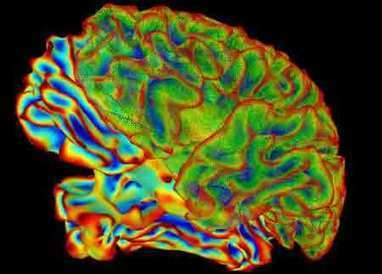 New Study Decodes Brain's Process for Decision Making | With My Right Brain | Scoop.it