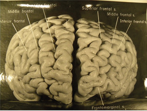 Scientists Get A New Look At Einstein's Brain   NYL - News YOU Like   Scoop.it