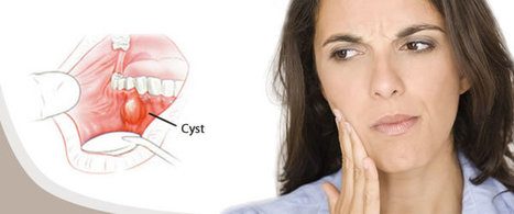 Dental Cyst Removal Surgery for Oral Health: What are the symptoms and treatments for dental cysts? | Best Dental Treatment Secunderabad. | Scoop.it