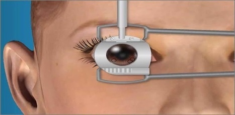 Virtual Eye Surgery - Android Apps on Google Play | Android Apps | Scoop.it