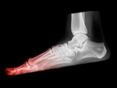 What Is A Stress Fracture And How Is It Caused? | Orthopedic Doctors | Scoop.it