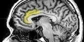 Brain Activity Predicts Re-arrest | Psychology Professionals | Scoop.it
