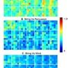 Neurobiology of hemispheric asymmetry