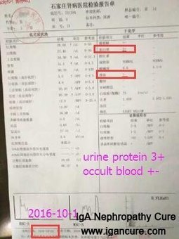 Why Nephrotic Syndrome Patients Have Proteinuria_IGA Cure   igancure.com   Scoop.it