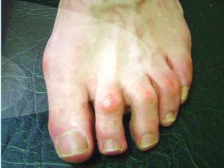 Visit www.damienlafferty.com.au | hammertoe surgery | Scoop.it