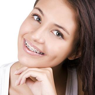 Braces Treatment in New Delhi | Dental Clinic in New Delhi | Scoop.it