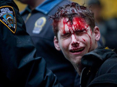 Blood on Wall Street: Violent OWS arrests (GRAPHIC PHOTOS, VIDEO) — RT | CIRCLE OF HOPE | Scoop.it