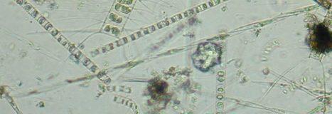 The Marine Mammal Center : Domoic Acid Toxicity | Environmental Education - Domoic Acid | Scoop.it