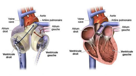 Munie du plus petit cœur artificiel du monde, elle reçoit (avec succès) une greffe | Le pouvoir du transhumanisme | Scoop.it