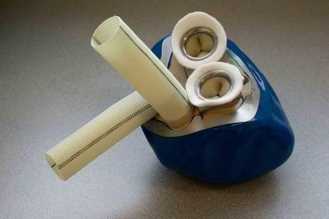 Carmat - Un quatrième coeur artificiel va être greffé | Health , Preventive  health | Scoop.it