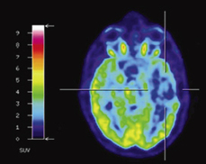 Ahead of Print: PET for Meningioma | Psychology and Brain News | Scoop.it