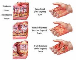 Pengobatan Alami Penghilang Bekas Luka Bakar » Obat Sakit Liver Tradisional   Pengobatan Alami Untuk Mengatasi Osteoporosis   Scoop.it