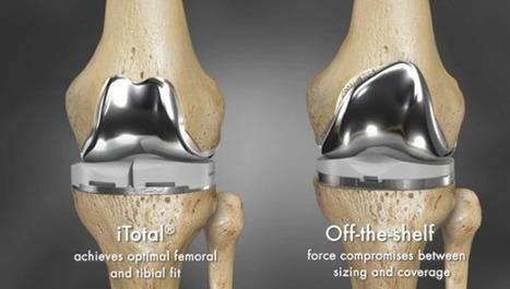 3D printing brings revolution in knee surgeries | 3D printing in education | Scoop.it