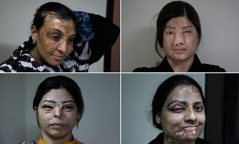Plastic surgeon provides free treatment to victims of acid attacks | Health & Beauty | Scoop.it