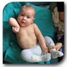 okołoporodowe uszkodzenie splotu ramiennego