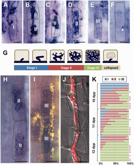 Lipid Droplets of Arbuscular Mycorrhizal Fungi Emerge in Concert with Arbuscule Collapse | bolets.cat | Scoop.it