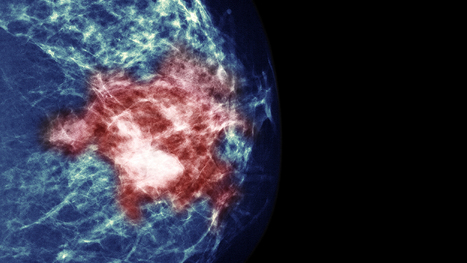 Study Of Breast Cancer Treatment Reveals Paradox Of Precision Medicine | Breast Cancer News | Scoop.it