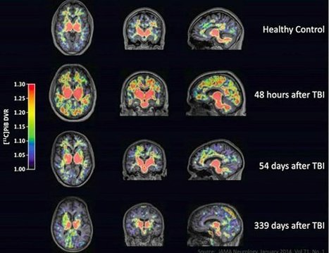 Traumatic Brain Injury: The Hidden Epidemic Nobody Wants to Talk About | Brain Injury | Scoop.it