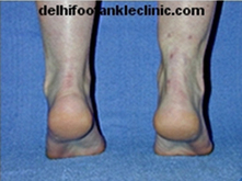 Achilles Tendon Surgery in India | Health | Scoop.it