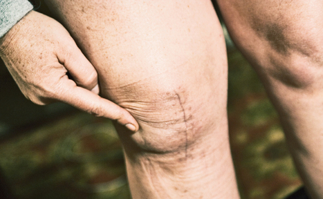 Amino acids may let new knees work faster - Futurity | Salud Integral | Scoop.it