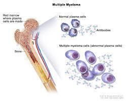 F1000Research Article: Recent advances in understanding multiple myeloma. | PARP Inhibitors Cancer Review | Scoop.it