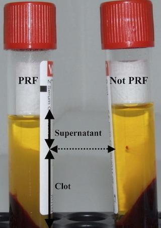 Dal PRP alla PRFM: l'evoluzione della medicina rigenerativa | Viso Giovane [senza bisturi!] | Scoop.it