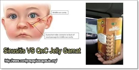 Obat Sinusitis Tradisional Akut dan Kronis Manjur | Jelly Gamat Gold G | Scoop.it