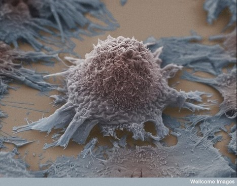 Starving cancer cells of sugar could be the key to future treatment | The future of medicine and health | Scoop.it