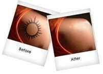 Choose Your Own Way to Remove Tattoo   Cyclicx.com   Beauty Updates   Scoop.it