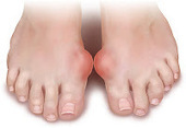 What Is Gout? | Gout pain treatment -Get rid of your Gout pain today | Gout pain treatment | Scoop.it