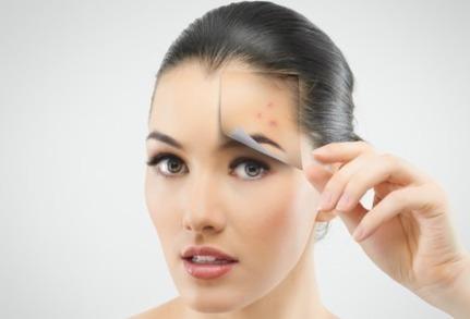 Home remedies for getting rid of chicken pox scars naturally | ladki patane ke tarike tips | Scoop.it
