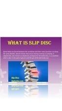 Stop Suffering From Slip Disc | Rheumatoid Arthritis | Osteoarthritis | Knee Arthritis | Scoop.it