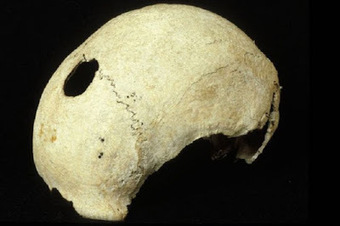 The Archaeology News Network: Battle-scarred skull found at Culloden 3D scanned | Histoire et archéologie des Celtes, Germains et peuples du Nord | Scoop.it