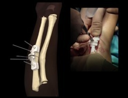Resetting Bones with 3D Printed Implants | Managing Technology and Talent for Learning & Innovation | Scoop.it