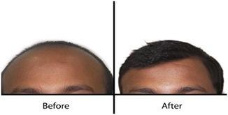 Hair transplantation in Hyderabad | Hair Treatments | Scoop.it