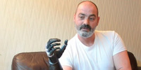 New Prosthetic Hand Has Sweet Skills, Terminator Looks | Wired Science | Wired.com | Cyborg Lives | Scoop.it