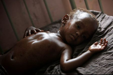 Cholera claims 67 lives in Somalia | Actualités Afrique | Scoop.it