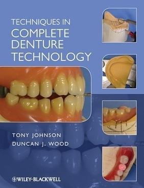 Dental Books: Techniques in Complete Denture Technology 2012 ebook | complete denture and partial denture technology | Scoop.it