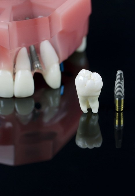 Say Goodbye to a Painful Mouth with a Painless Wisdom Teeth Removal | Downtown Dental | Scoop.it