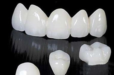 Chi phí răng giả cho 4 răng cữa | Nha Khoa | Scoop.it