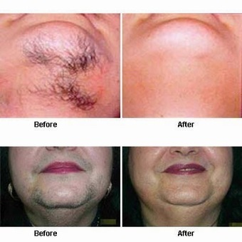 Laserbella,Hair Removal: Get Smoother Skin With Laser Hair Removal Treatment- Laserbella | Laser Hair Removal | Scoop.it