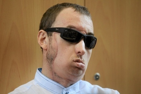 Poland's First Face Transplant Patient Can See, Eat, Taste and Speak Again (Video)   Medical Engineering = MEDINEERING   Scoop.it