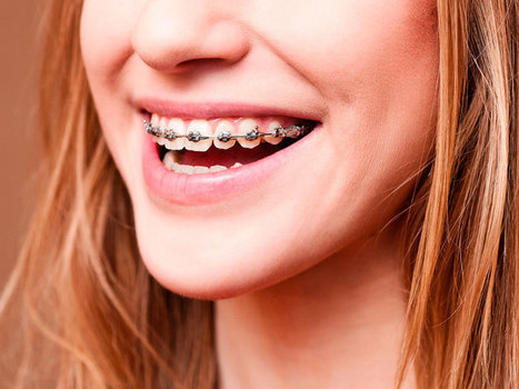 Braces can benefit individuals of all ages   Dental Care   Scoop.it