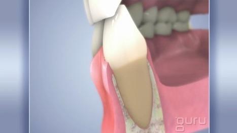 Gingivitis | Pediatric Dentist | Scoop.it