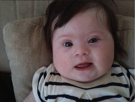Alençon. Louise, ma fille, quatre mois, atteinte de trisomie. L'émouvant message d'une maman | Le Mag ornais.fr | Scoop.it